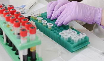 Registrados 342 casos más por Covid-19 en Euskadi,